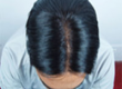 Hiar replacement in bangalore india; hair weeaving; hair bonding; hair wig for cancer patation; hair transplation;